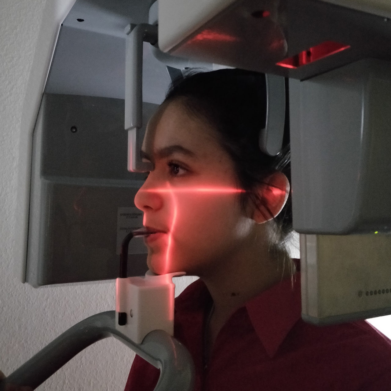 3D-Röntgen in der Kieferorthopädie?