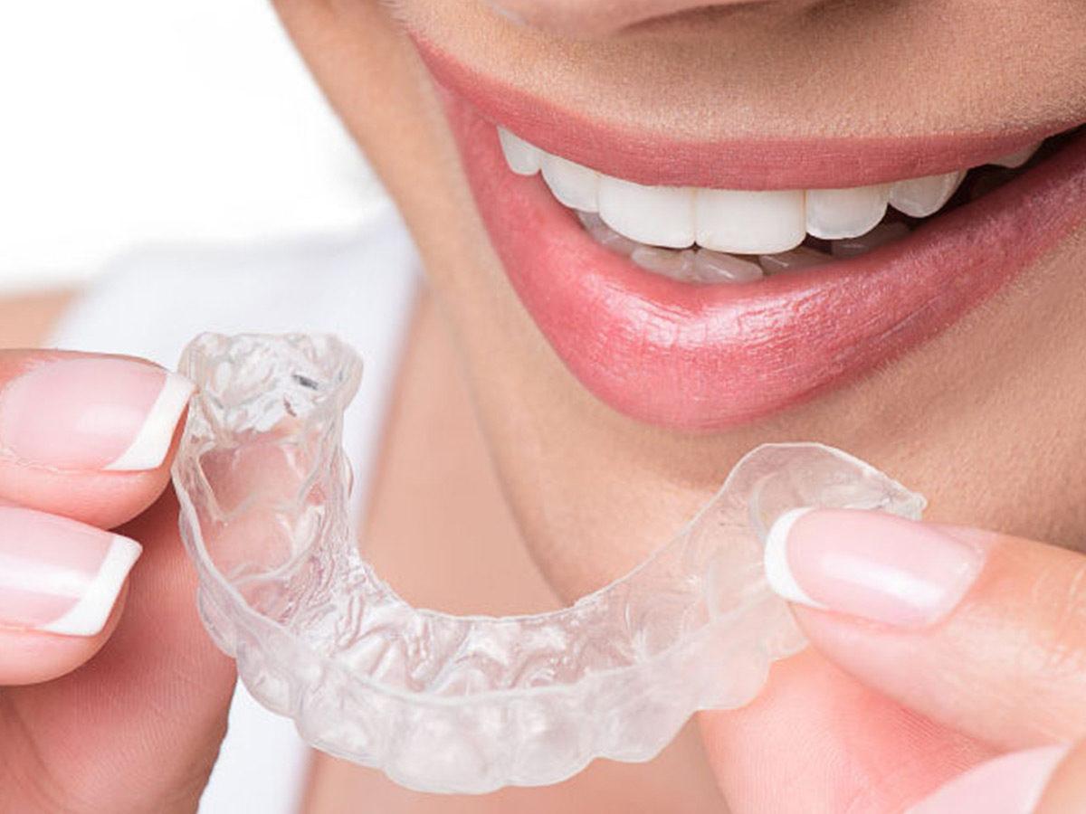 Invisalign Unsichtbare Zahnkorrektur