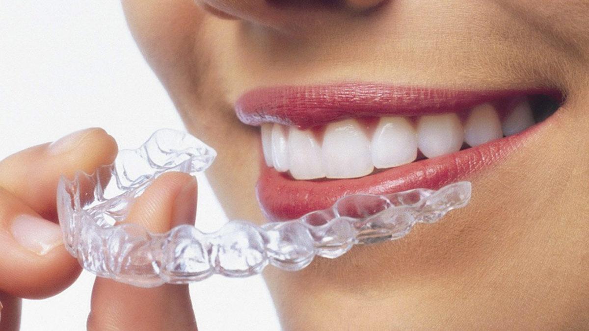 Invisalign Unsichtbare Zahnspange 2