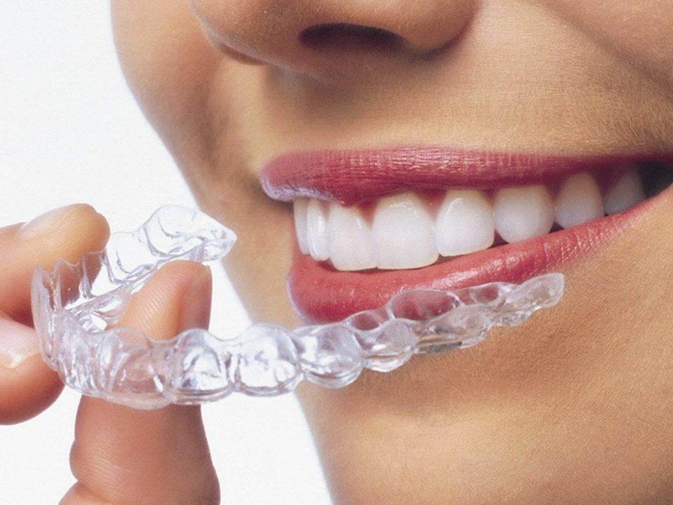 Unsichtbare Zahnspangen für Kinder