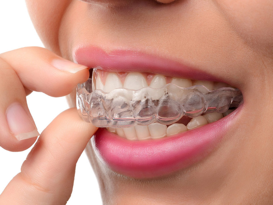 Invisalign-unsichtbare-zahnspange-3