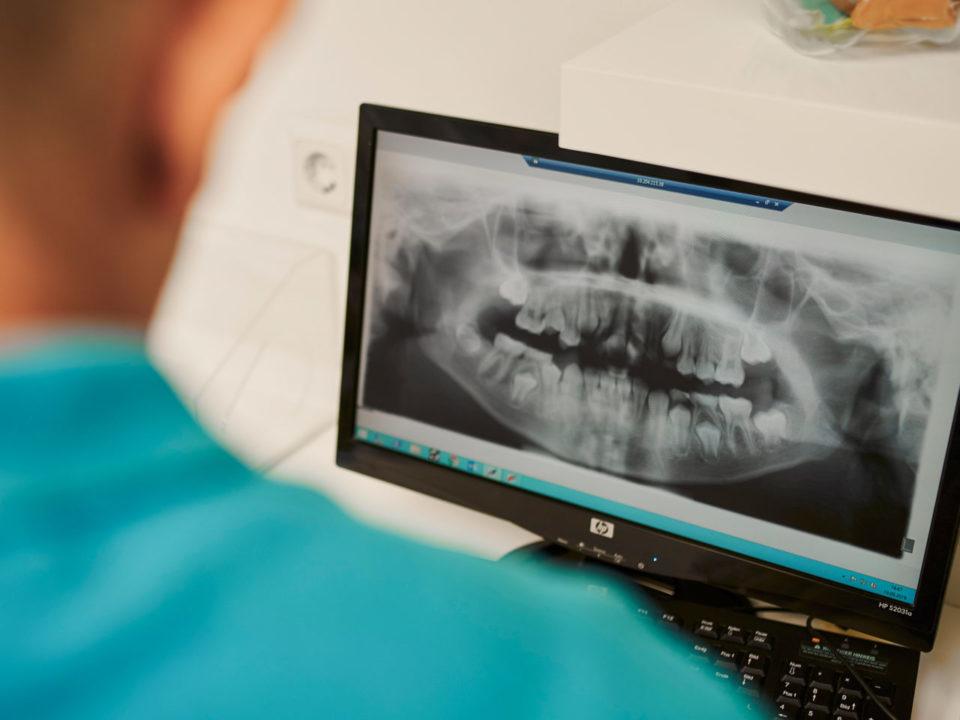 Anzeichen Zahn Kiefer Probleme Kieferorthopaedie Kinderzaehne Kfo Martin Baxmann Orthodentix
