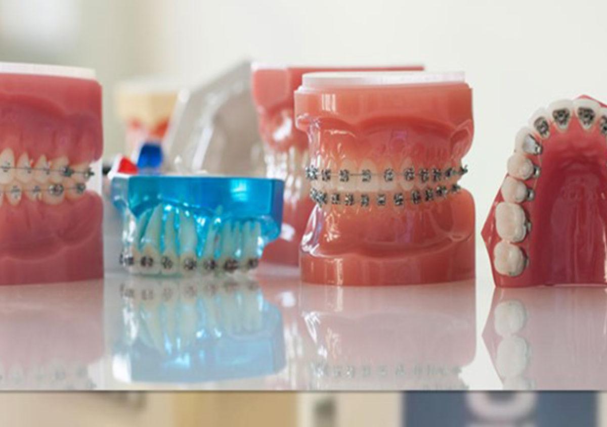 Feste Zahnspangen Lose Zahnspange Buegel Kieferorthopaedie Zahnarzt