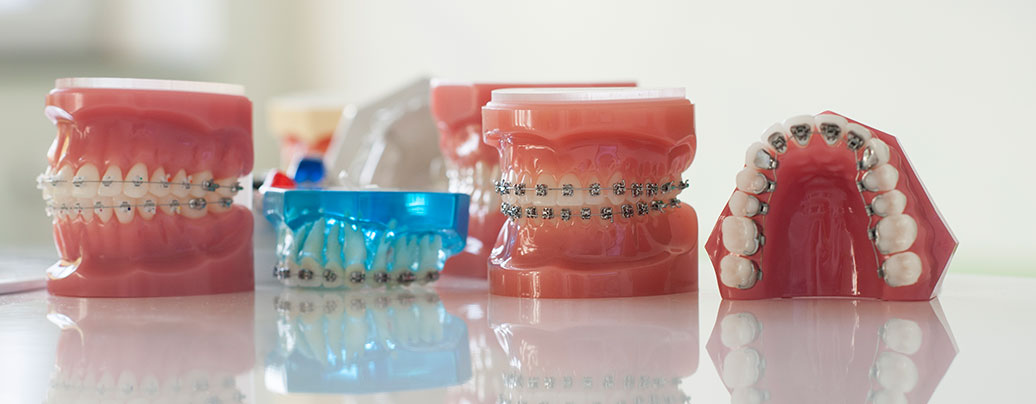 Festsitzende Zahnspange Orthodentix