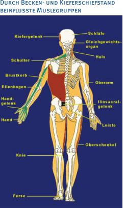 Kieferschiefstand Beeinflusste Muskelgruppen Orthodentix