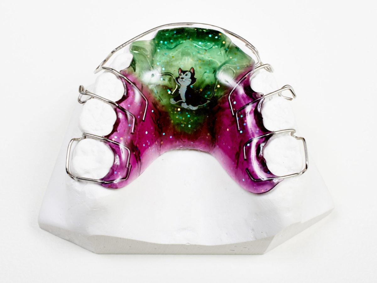 Lohse Zahnspange Vorteile Nachteile Kieferorthopaedie Kfo Orthodentix