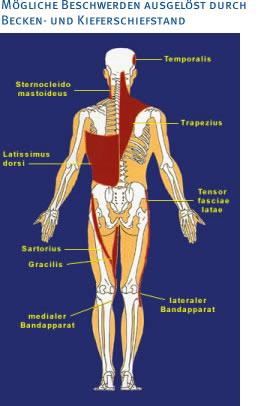 Moegliche Beschwerden Kiefergelenk Becken Schiefstellung Orthodentix