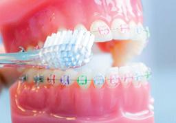Zahnbuerste Unterhalb Bracket Orthodentix