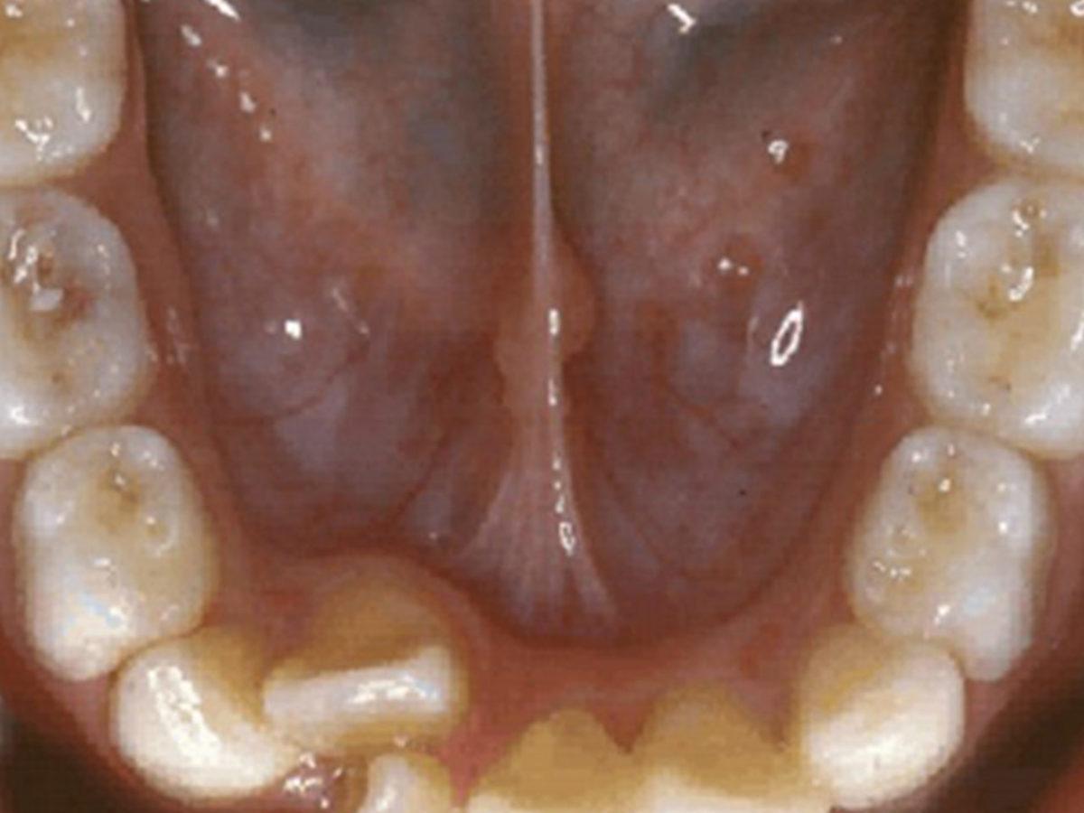 Zahnentfernung Gesundheit Kfo Dr Baxmann Orthodentix